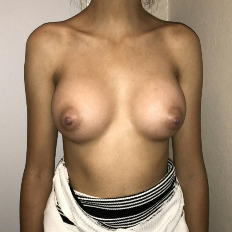 augmentation-mammaire-APRES